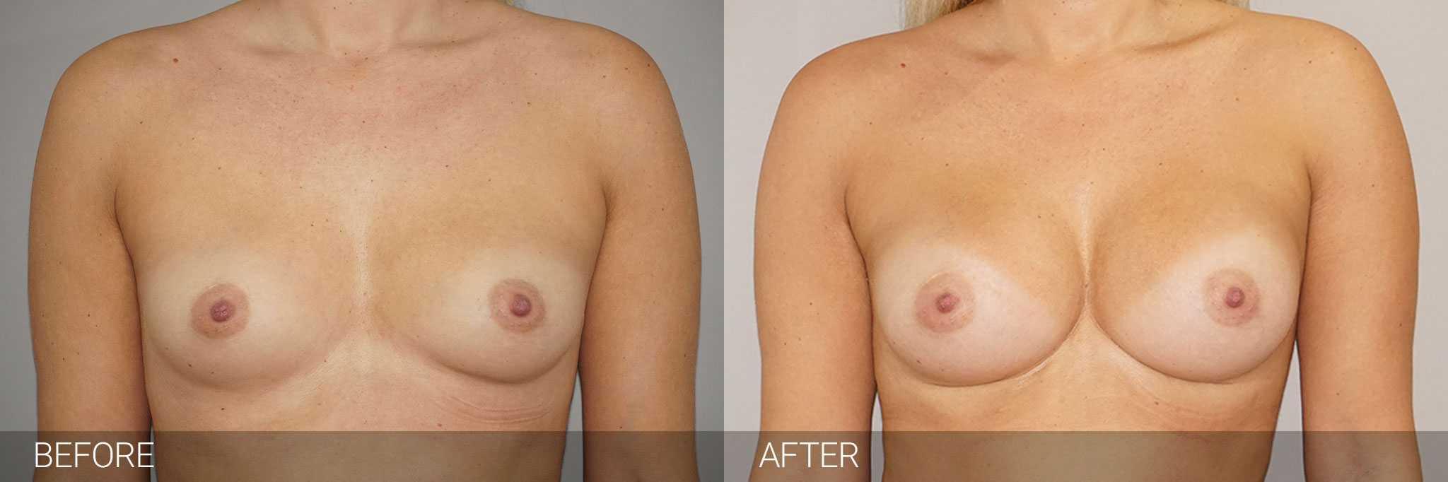 Augmentation mammaire Prothèses mammaires 280cc profil haut ante/post-op I