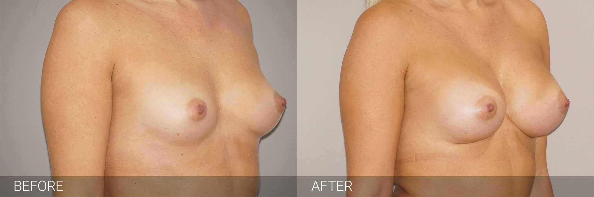 Augmentation mammaire Prothèses mammaires 280cc profil haut ante/post-op II