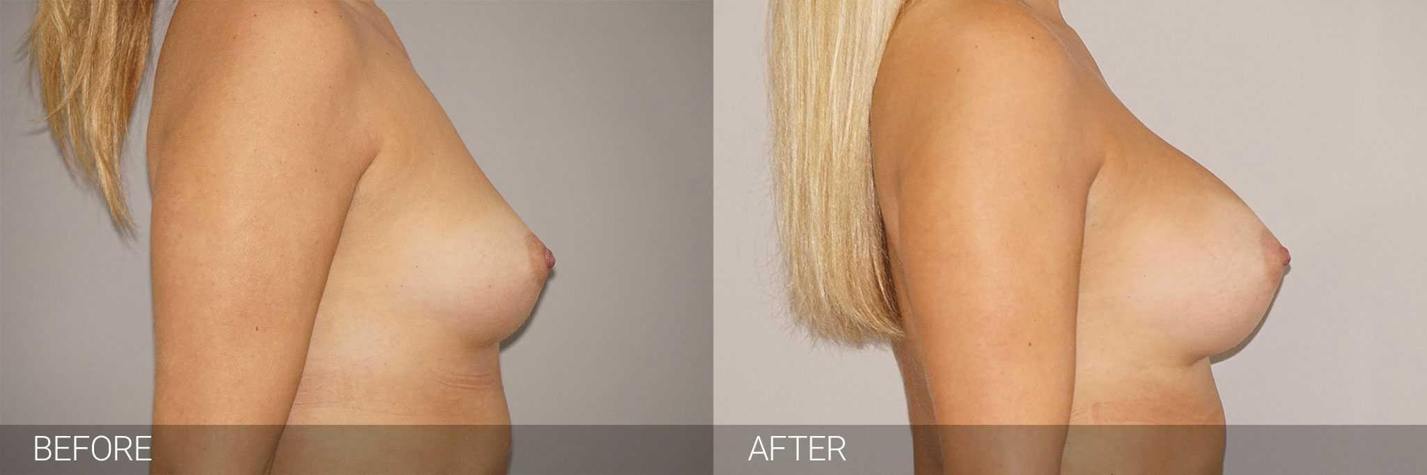 Augmentation mammaire Prothèses mammaires 280cc profil haut ante/post-op III