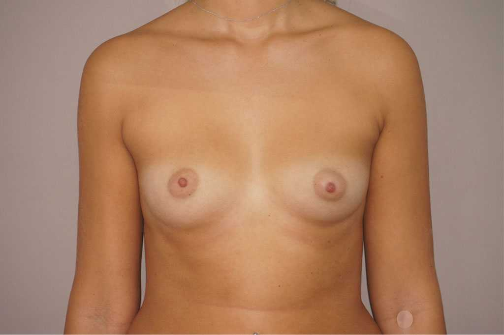 Breast Augmentation Nagor Anatomical 485cc before forntal