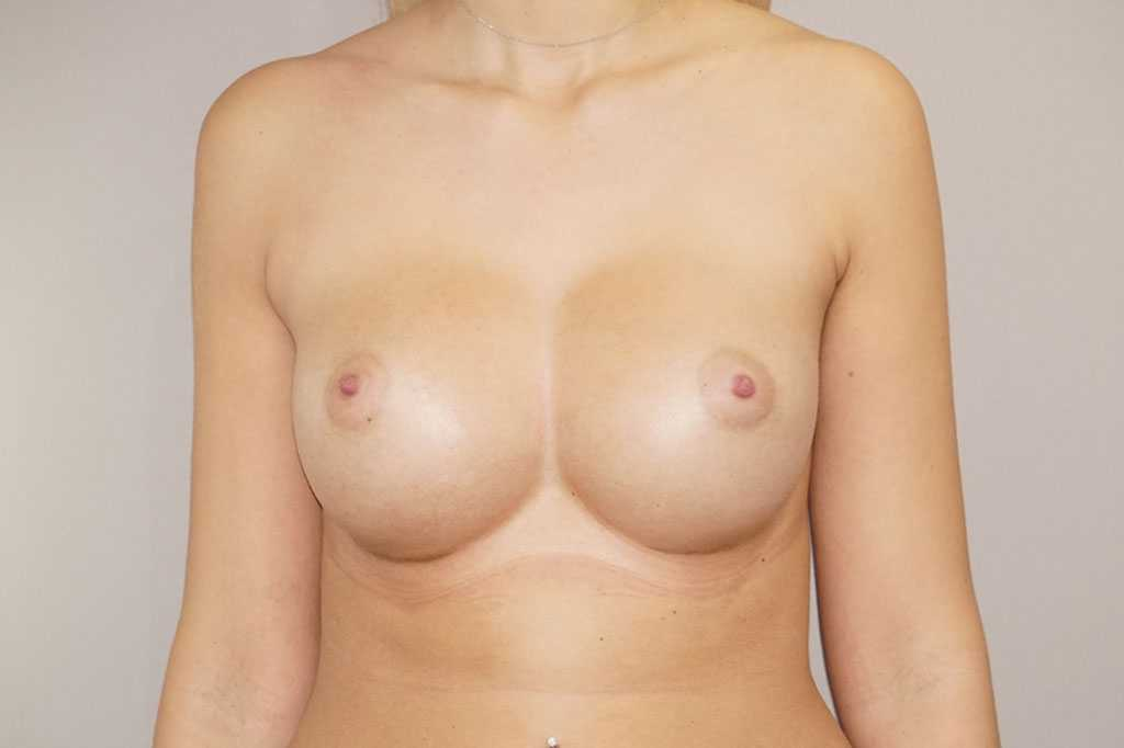 Breast Augmentation Nagor Anatomical 485cc after frontal