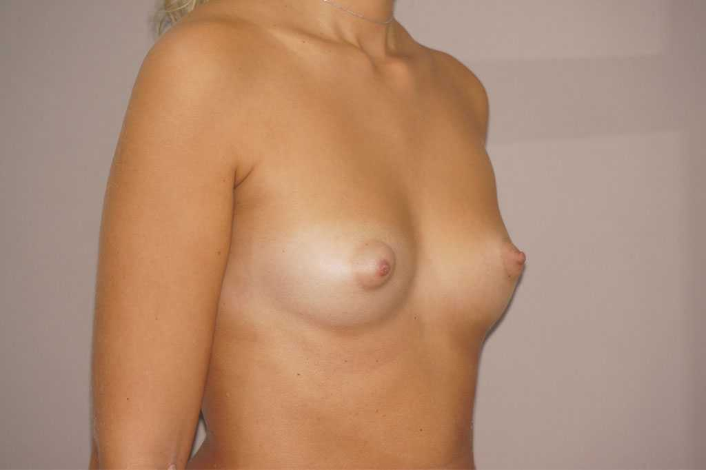 Breast Augmentation Nagor Anatomical 485cc before side
