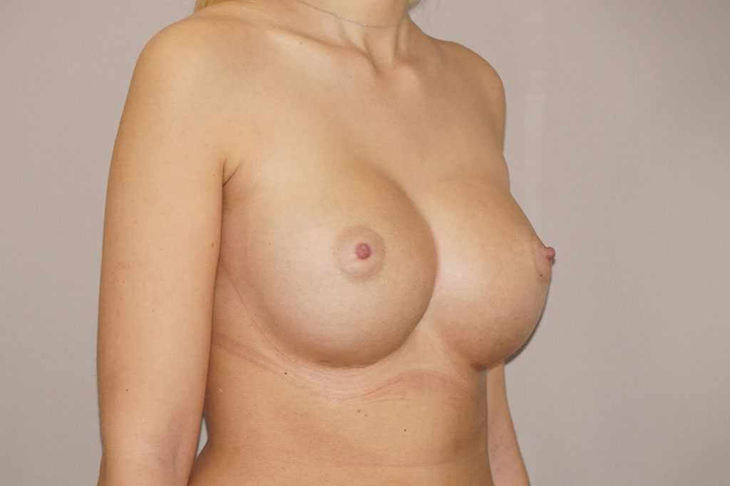 Breast Augmentation Nagor Anatomical 485cc after side
