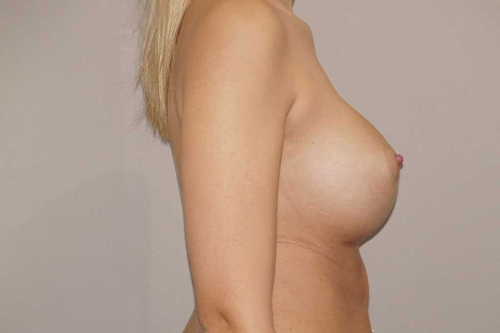 Breast Augmentation Nagor Anatomical 485cc after profile