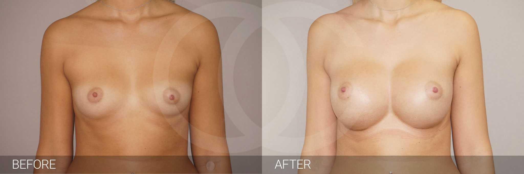 Antes y después Nagor 485cc Anatómico ante/post-op I