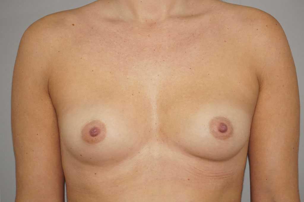 Brustvergrößerung 280cc Anatomisch Hochprofil before forntal