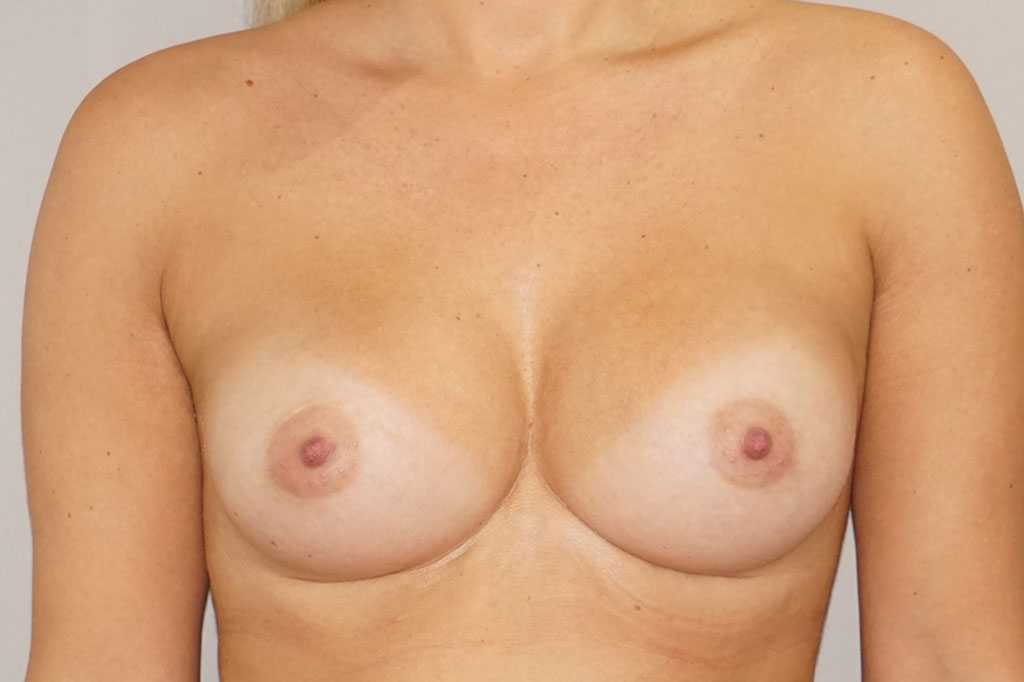 Augmentation mammaire 280cc anatomique profil haut prothèses mammaires post-op profil