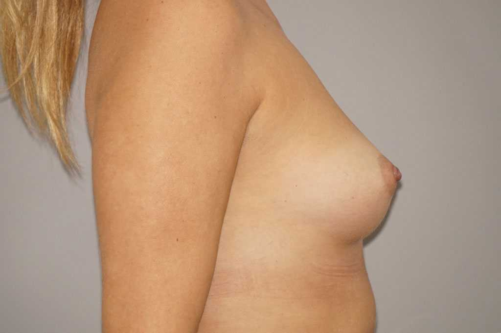 Breast Augmentation High Profile Implants 280cc before side