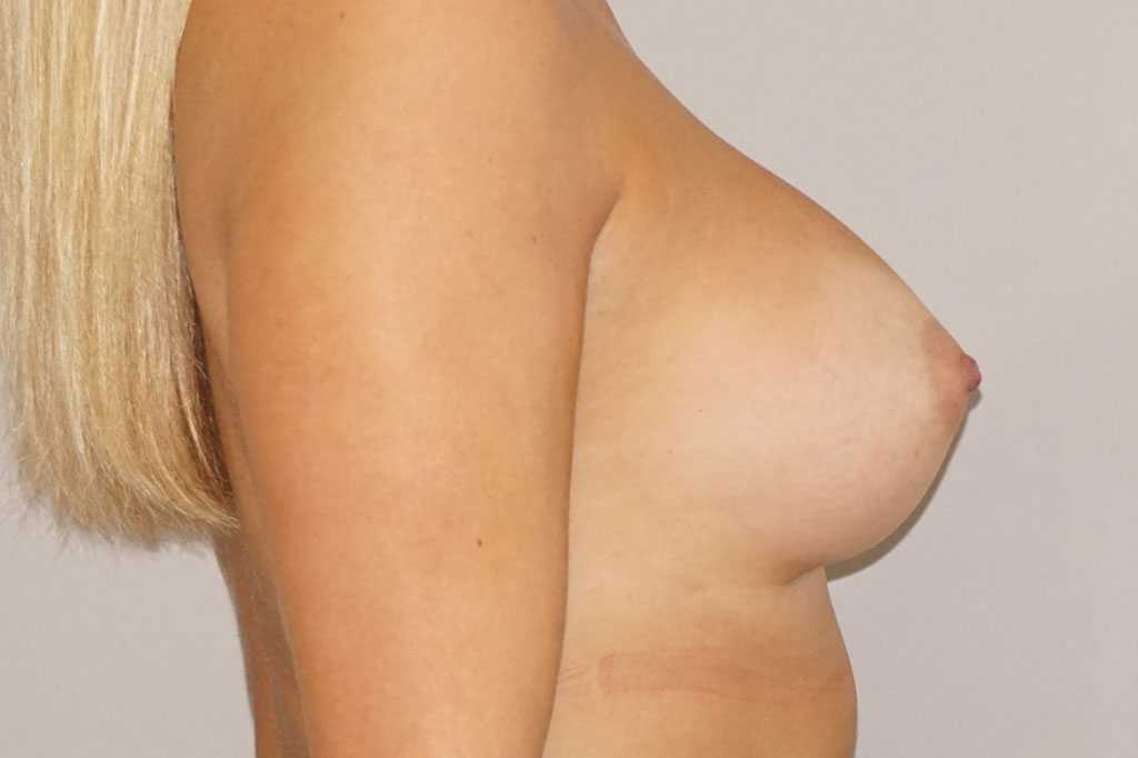 Augmentation mammaire 280cc anatomique profil haut prothèses mammaires post-op lateral