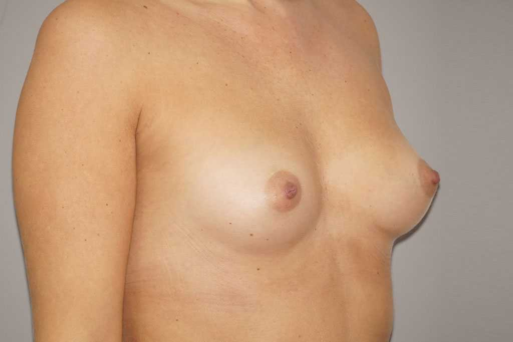 Breast Augmentation High Profile Implants 280cc before profile