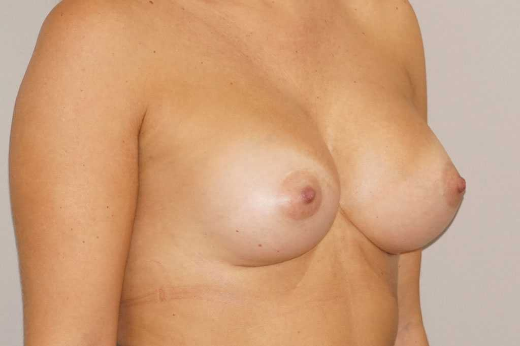 Breast Augmentation High Profile Implants 280cc after side
