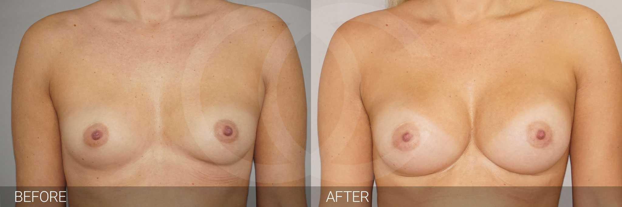 Augmentation mammaire 280cc anatomique profil haut prothèses mammaires ante/post-op I