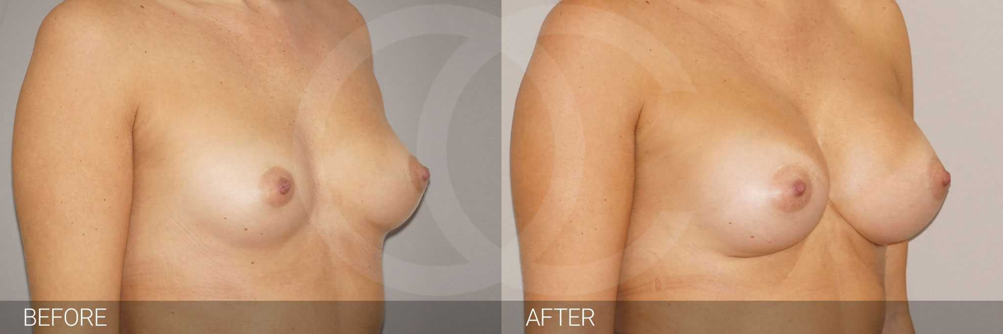 Breast augmentation high profile implants 280cc photos before and after