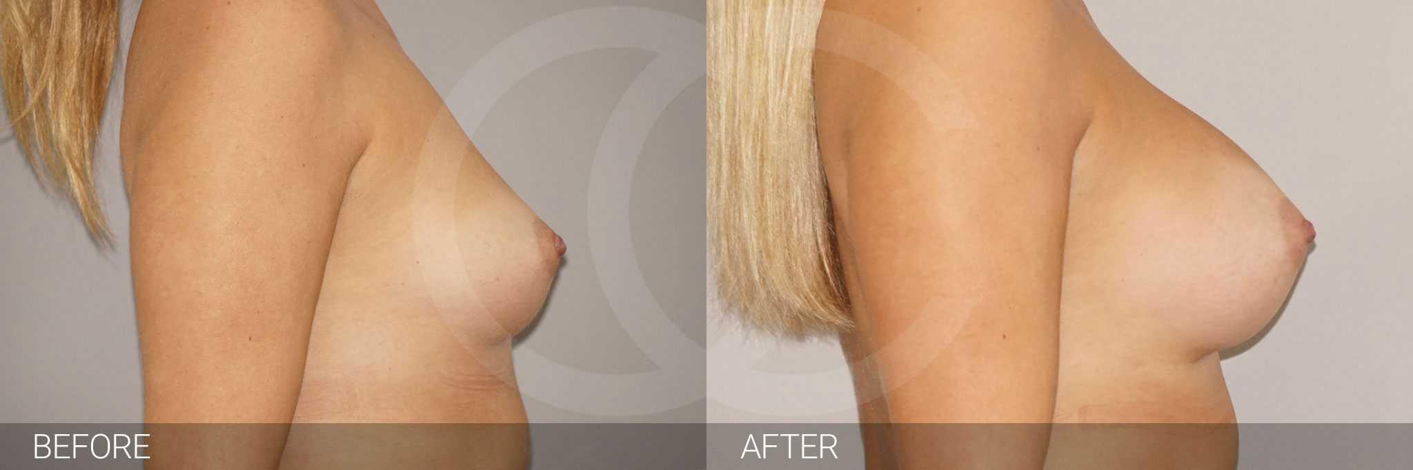 Augmentation mammaire 280cc anatomique profil haut prothèses mammaires ante/post-op III