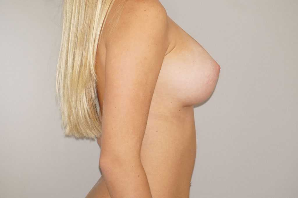 Breast Augmentation 300cc Anatomic High Profile after profile