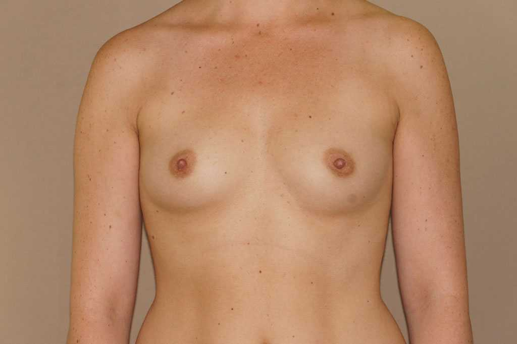 Breast Augmentation 350cc Round High Profile before forntal
