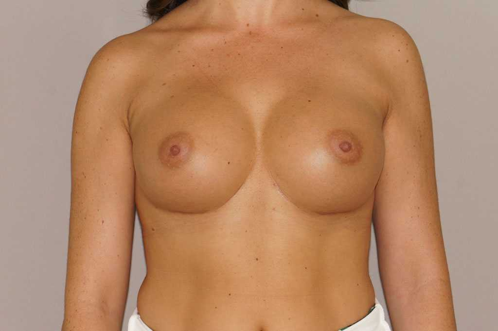 Breast Augmentation 350cc Round High Profile after frontal