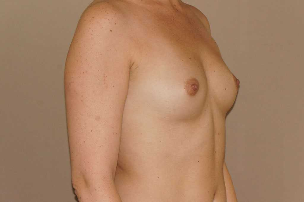 Breast Augmentation 350cc Round High Profile before side