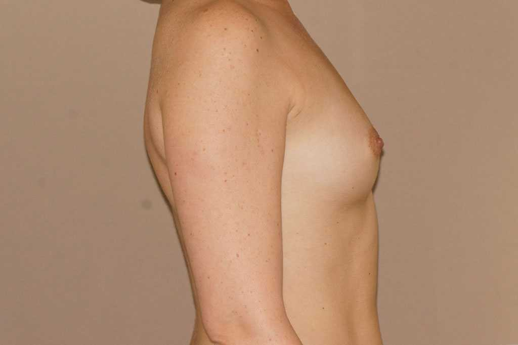 Breast Augmentation 350cc Round High Profile before profile