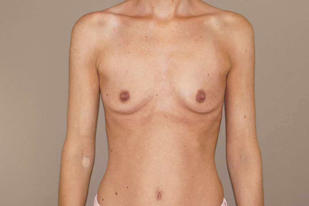 Breast Augmentation 375cc Anatomic High Profile before forntal