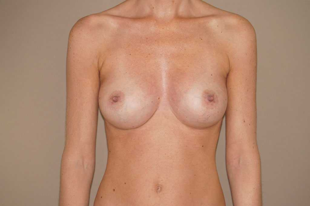 Breast Augmentation 375cc Anatomic High Profile after frontal