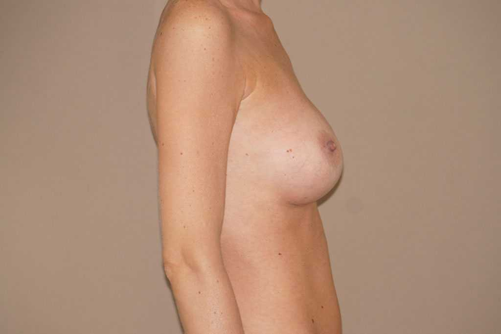 Breast Augmentation 375cc Anatomic High Profile after side