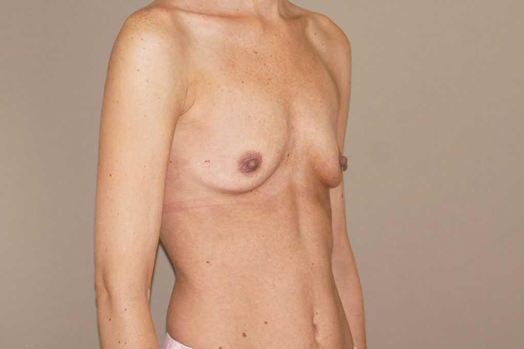 Brustvergrößerung 375cc Anatomisch Hochprofil ante-op retro/lateral