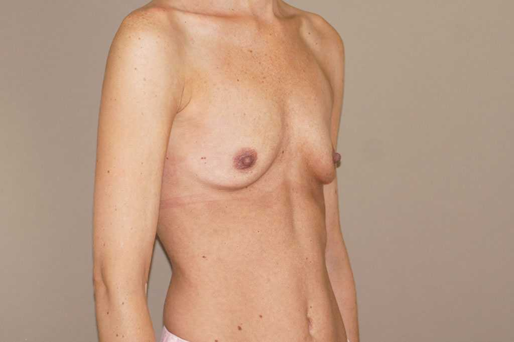 Breast Augmentation 375cc Anatomic High Profile before profile