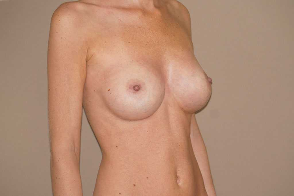 Breast Augmentation 375cc Anatomic High Profile after profile