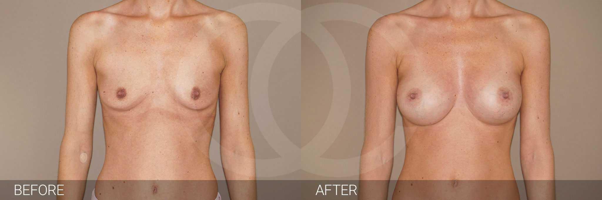 Brustvergrößerung 375cc Anatomisch Hochprofil ante/post-op I