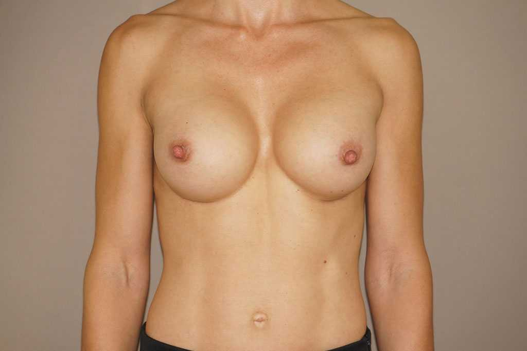 Breast Augmentation Silicone Implants after frontal