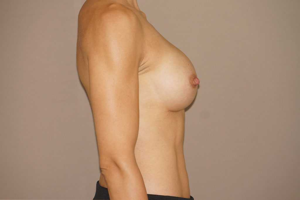 Breast Augmentation Silicone Implants after side