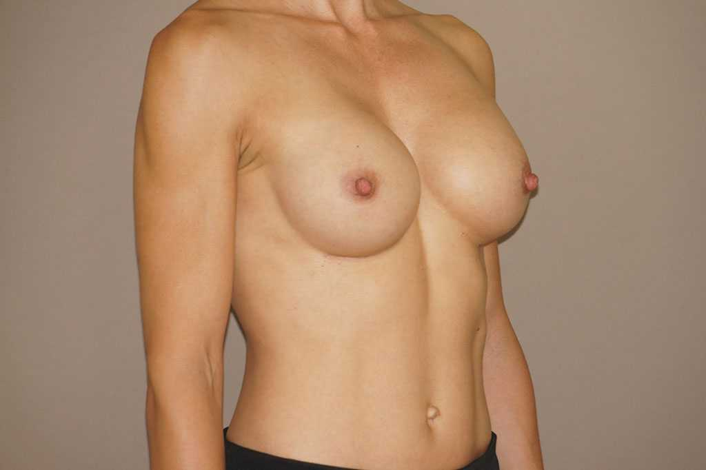 Breast Augmentation Silicone Implants after profile