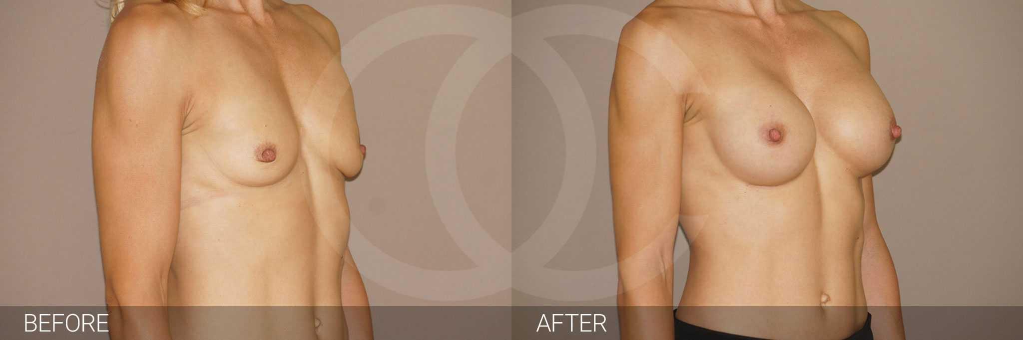 Augmentation mammaire Prothèses mammaires en silicone ante/post-op II
