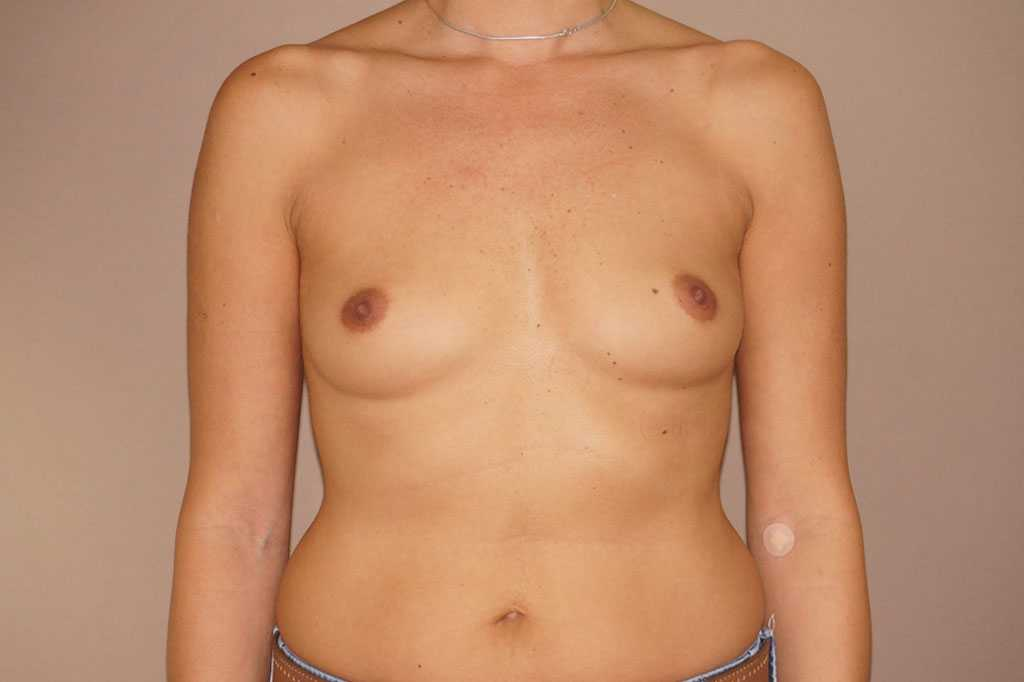 Breast Augmentation Silicone Implants before forntal