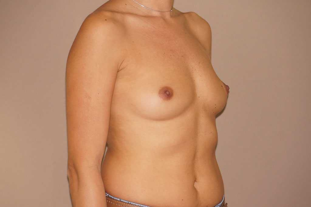 Breast Augmentation Silicone Implants before profile