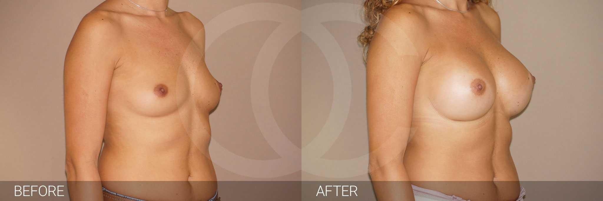 Augmentation mammaire Implants mammaires ante/post-op II