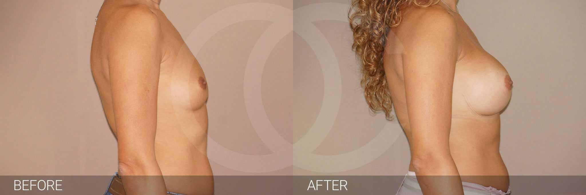 Augmentation mammaire Implants mammaires ante/post-op III