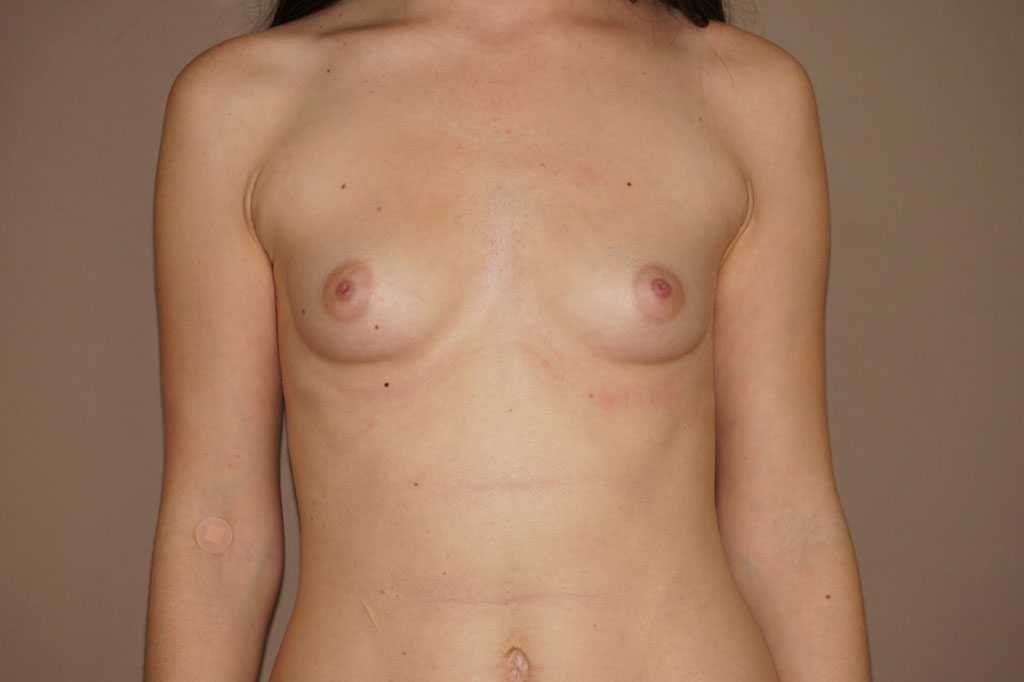 Breast Augmentation 400cc High Profile before forntal