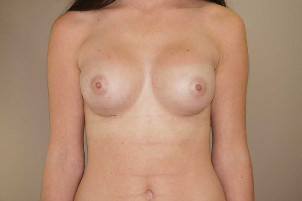 Breast Augmentation 400cc High Profile after frontal