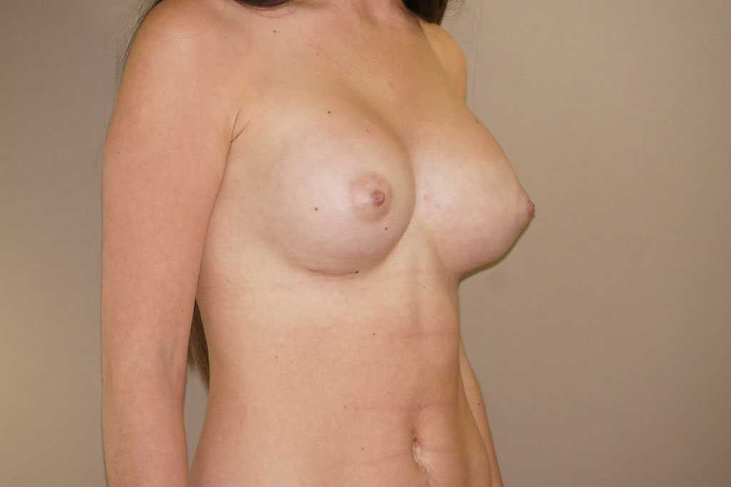 Breast Augmentation 400cc High Profile after profile
