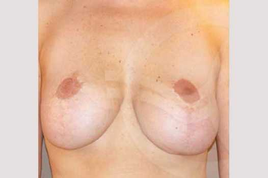 Breast Lift Correction of Bottoming Out before forntal