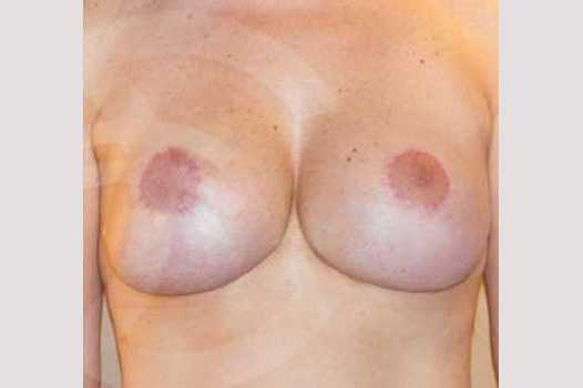 Breast Lift Correction of Bottoming Out after frontal