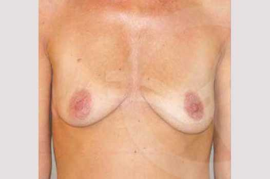 Breast Lift Uplift with 325cc Implants before forntal
