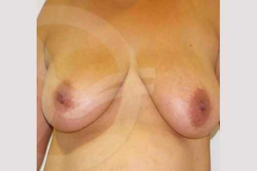 Breast Lift Vertical Incision before forntal