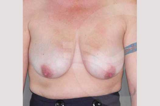 Breast Lift 350cc round implants before forntal