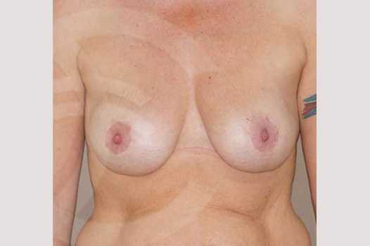 Breast Lift 350cc round implants after frontal