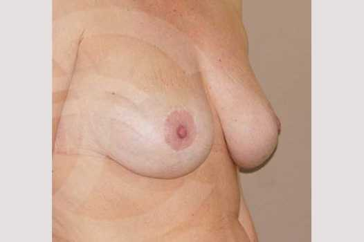 Breast Lift 350cc round implants after side