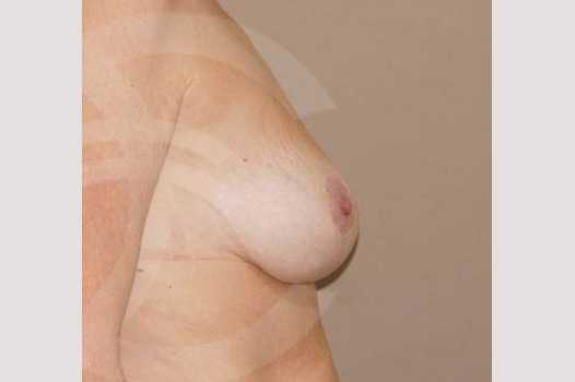 Breast Lift 350cc round implants after profile