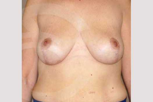 Breast Lift Inverse-T Scar after frontal